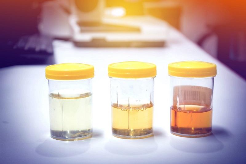 7 Alimentos e Bebidas Que Podem Causar Urina Turva