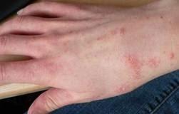 Image result for Mengurangkan gatal-gatal kulit