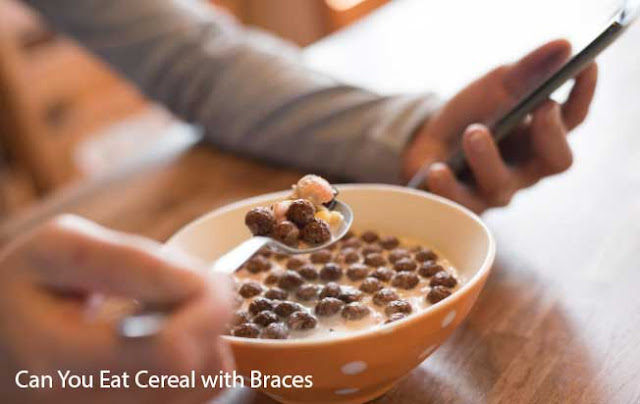 Can You Eat Cereal with Braces