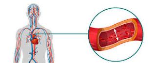 Causas de la hipertensión aguda