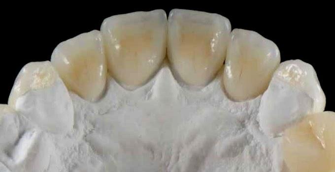 CASO CLÍNICO: Rehabilitación adhesiva y colocación de implante post exodoncia en paciente con Diabetes Mellitus tipo II