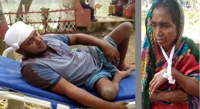 কুমিল্লার মুরাদনগরে প্রতিবন্ধীকে কুপিয়ে জখম, তার আপন চাচা ভেঙ্গে দিয়েছে মায়ের হাত ও দাঁত