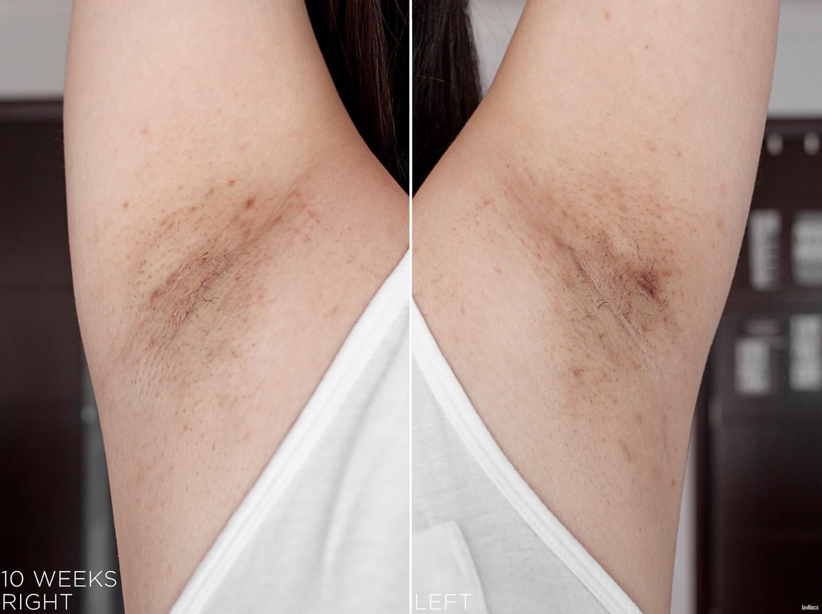 tria Hair Removal Laser Armpits Hair 10 Weeks, 2 months