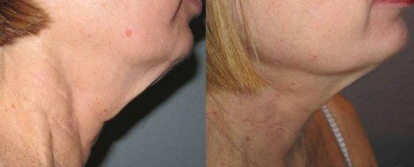 Image result for turkey neck