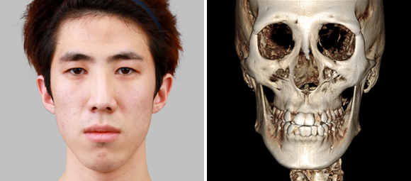 짱이뻐! - Korean Two Jaw Surgery Was The Right Solution For Him