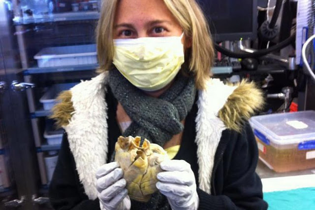 Penny holds her heart in her hands, which had to be replaced with a donor organ