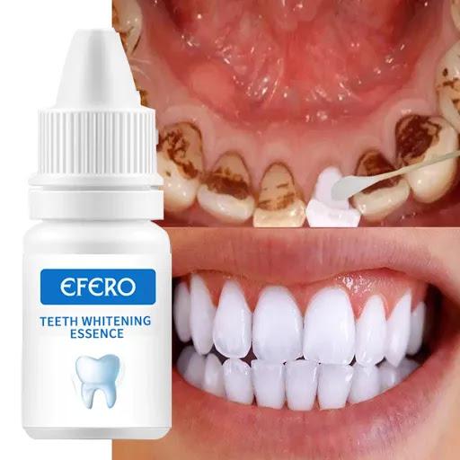 Teeth Whitening Essence Clean Oral Hygiene Whiten Teeth Just For $5.50