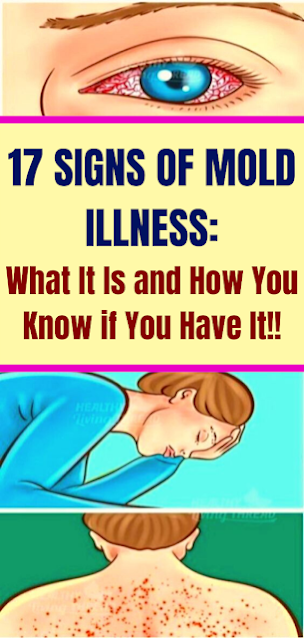 17 Signs Of Mоld Illnеss: Whаt It Is аnd Hоw Yоu Knоw if Yоu Hаvе It!!