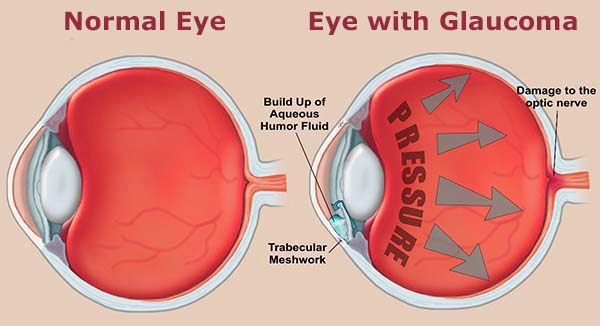 glaucoma home remedies