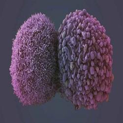 Dois medicamentos para câncer de pulmão aprovados pelo NHS Scotland