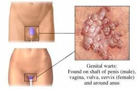 Image Muncul Bintik Kasar Di Sekitar Bibir Vaginaku