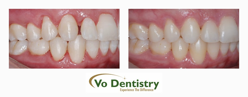 Tooth colored restorations, Vo Dentistry, Lawrenceville, GA 30043