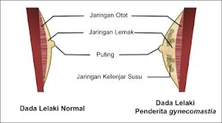 Penyakit Gynecomastia (ginekomastia): Obat, Gejala, dll. • Hello Sehat, Apa itu Ginekomastia: Gejala, Penyebab, Diagnosis, dan Cara, GYNECOMASTIA, HAL YANG MEMALUKAN BAGI KAUM PRIA, GYNECOMASTIA (Pembesaran Dada Pria): Apa itu Penyakit Gynecomastia