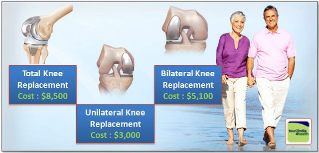 Knee Replacement Surgery Cost and Packages in India