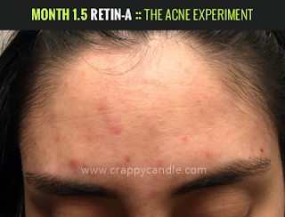 Month 1.5 on Retin-A :: The Acne Experiment