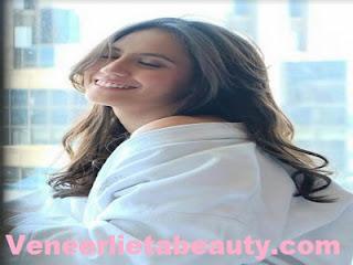 Perawatan Veneer Gigi - veneerlietabeauty.com