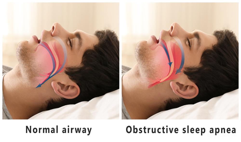 Cannabis an effective treatment for - Obstructive sleep apnea
