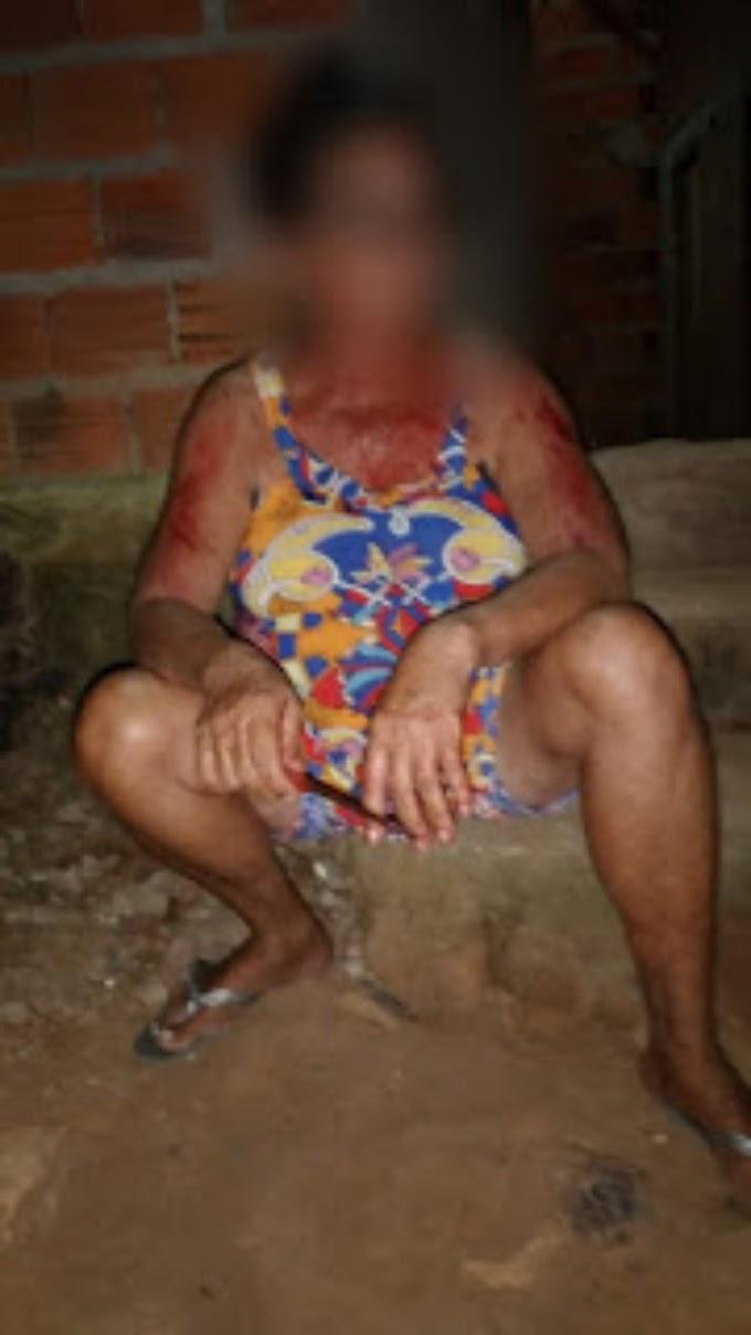 Idosa que esfaqueou bandido sofre novo ataque a pedradas no povoado Pau d'água em São Bernardo-MA