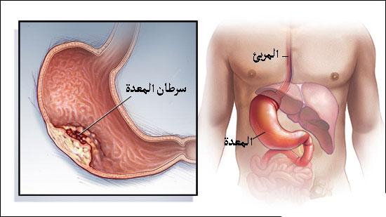 تشخيص سرطان المعدة وطرق العلاج . علاج سرطان المعدة والاغذية وما تحتاج معرفته والحماية  Stomach Cancer