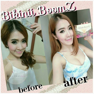 Before After pemakaian bikini boomz thailand