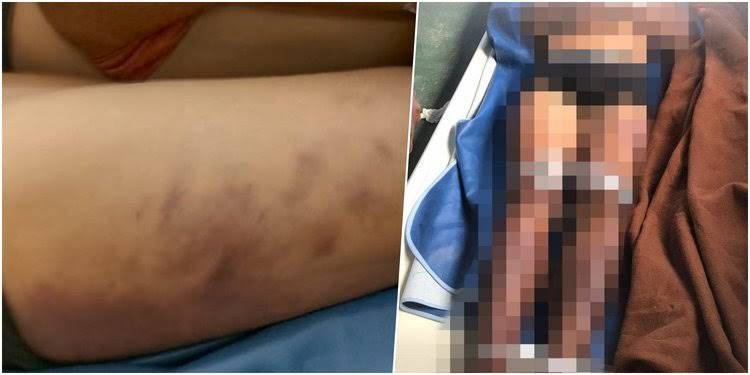 Hendri Tewas Usai Ditangkap Polisi, Kompolnas Minta Propam Periksa Penyidiknya