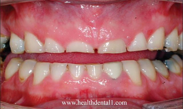 اسباب تاكل الاسنان وطرق الوقاية