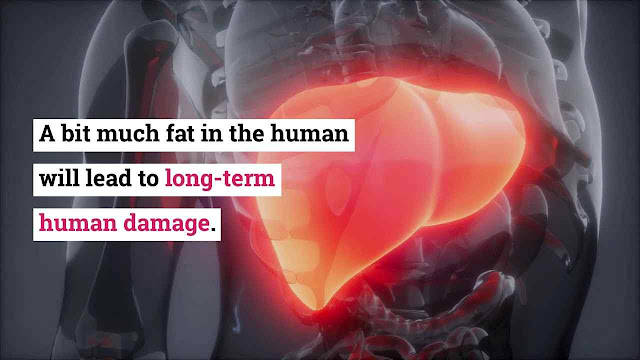 Fats on liver