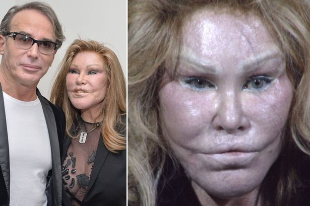 first image of Jocelyn Wildenstein Plastic Surgery Gone Wrong with Catwoman Jocelyn Wildenstein reveals she's spent $6.5m on ...