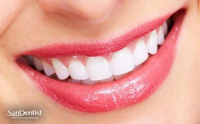 Bọc răng sứ phù hợp với lứa tuổi bao nhiêu?