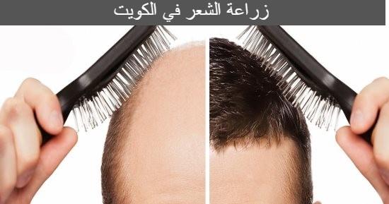 زراعة الشعر في الكويت