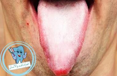 علاج اللسان الابيض - سبب تغير لون اللسان الي الابيض - علاج اللسان الابيض بالاعشاب - الوقاية من اللسان الابيض