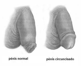 O que é a circuncisão