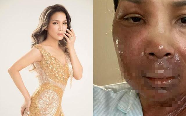 Ca sĩ Hồng Ngọc bất ngờ công khai ảnh bị bỏng 2/3 gương mặt do nồi xông hơi