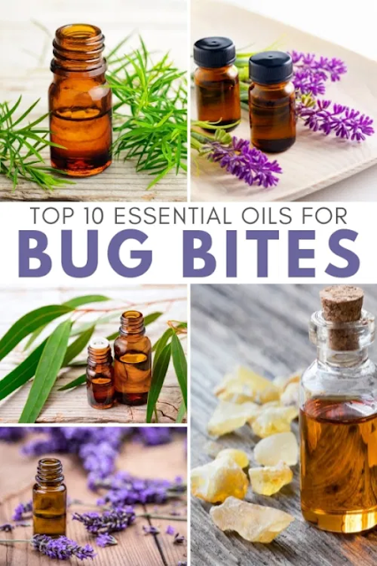 Best Essential Oils for Bug Bites (Mosquito, Fly, Bed Bug and other Insects)!