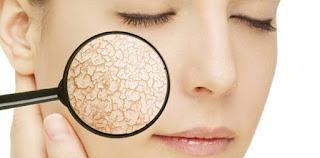 Solusi kulit kering wajah, bahan alami mengobati kulit kering pada wajah dan tangan