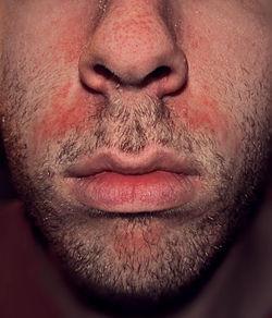 dermatitis-seboroik