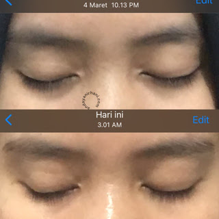 before after review npure eye serum