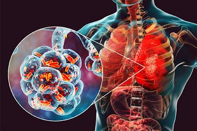 prolonged flu-like symptoms