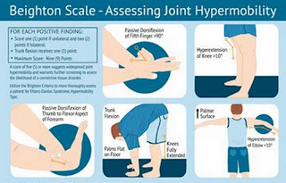 Beighton Scale, one of the tests used to check the hypermobility of the joint ehlers danlos syndrome images