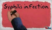 Pencegahan dan Pengobatan Sipilis pada Pria dan Wanita
