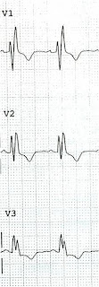Dr. Smith's ECG Blog: RBBB with dynamic T-waves