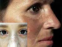 akibat-tidak-memakai-sunscreen