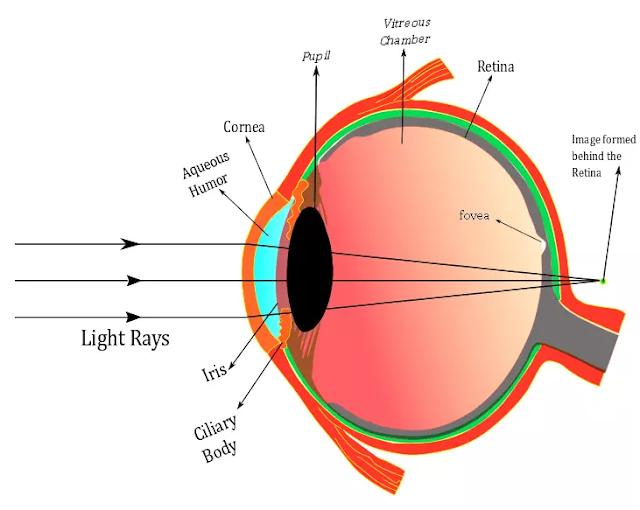 Hypermetropic eye , Eye Diagram,  Common eye defects