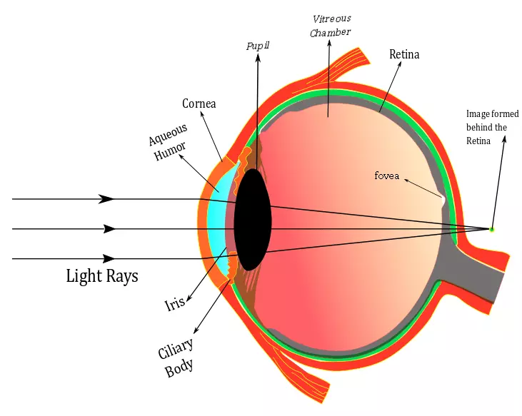 Hypermetropia Diagram , Eye diagram , Hypermetropia , Farsightedness meaning