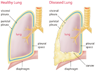 Malignant Pleural Mesothelioma Is A Very Aggressive And Challenging Cancer