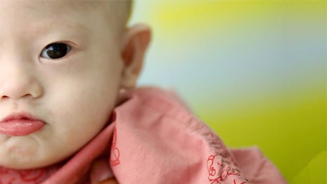 Una prueba médica podría erradicar el síndrome de Down