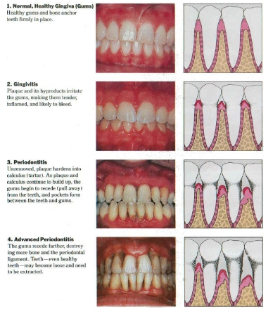 Fluoride Exposure A Major Risk Factor in Periodontal Disease which