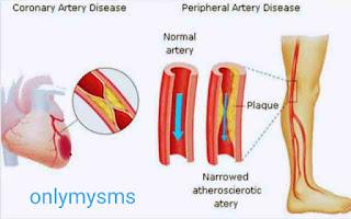 Blocked veins natural treatment