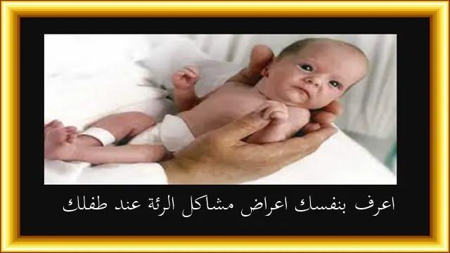 علاج سرعة التنفس عند حديثي الولادة