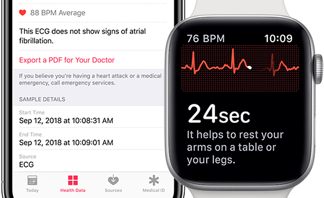 apple-watchos-5-3-ecg-singapore